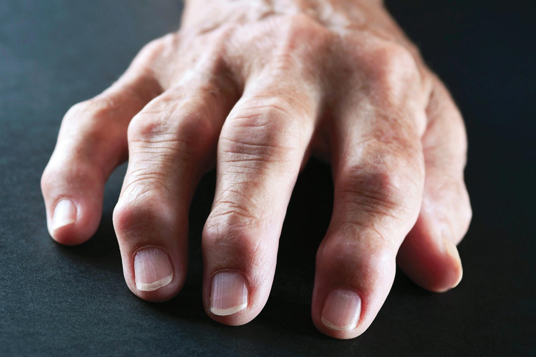 روماتیسم مفصلی در دستان
