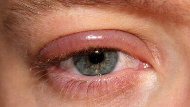 چشم ملتهب