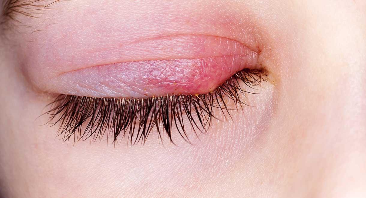 التهاب پلک بالایی چشم