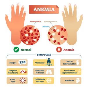 علائم کم خونی- Amenia Signs