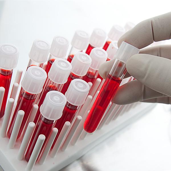 کم خونی در کودکان- Anemia